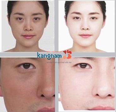 Hình ảnh tắm trắng tại Kangnam