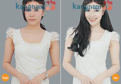 Hình ảnh khách hàng sau khi tắm trắng bằng sữa non tinh chất nano