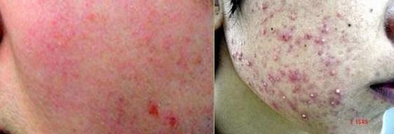 Da bị tổn thương bởi các hóa chất trong kem tắm trắng