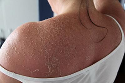 Nhiều người tắm xong bị trầy xước, tổn thương da do loại muối này có pha trộn nhiều hoá chất8