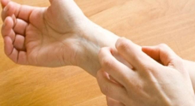 Tắm trắng gây vàng lông - Nguyên nhân do đâu? 3