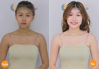 Hình ảnh khách hàng trước sau tắm trắng tại Kangnam