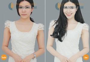 Tắm trắng da mặt tại Kangnam có tốt không? 4