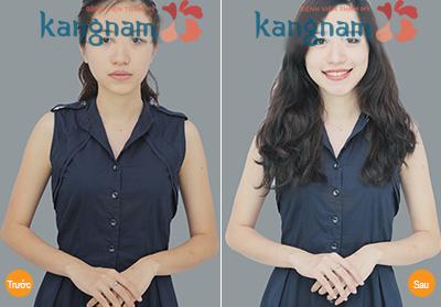 Tắm trắng tại Kangnam